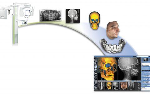 Ventajas de la Tomografía Computada Cone Beam