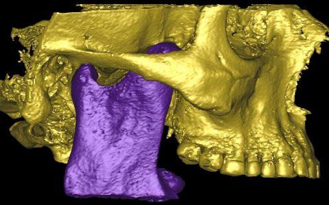 Articulación Temporo Mandibular (ATM)