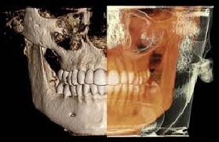 Estudios Especiales Dentales